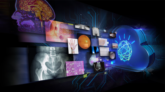 agfa-healthcare-joins-watson-health-medical-imaging-collaborative